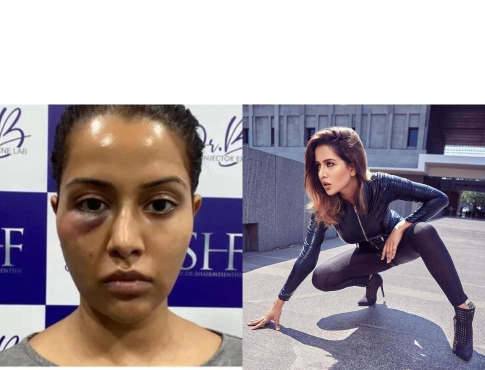 'Dermatologist forced me...': Former Bigg Boss contestant Raiza Wilson's facial treatment goes wrong, shares picture