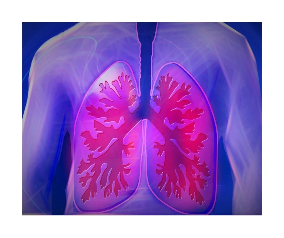 Lung cancer is the leading cause of cancer deaths; here's all you need to know about the diagnosis, risks and more