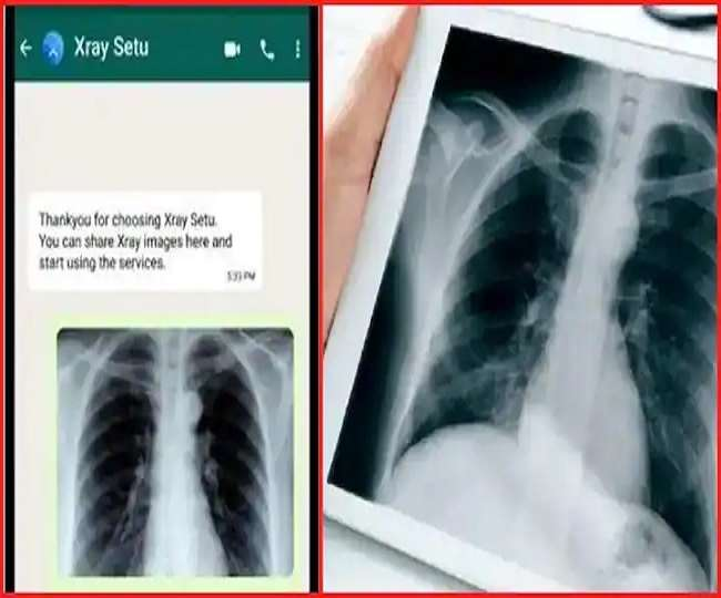 COVID-19 Testing: X-Ray Setu on WhatsApp can detect coronavirus without RT-PCR test; here's how to use it
