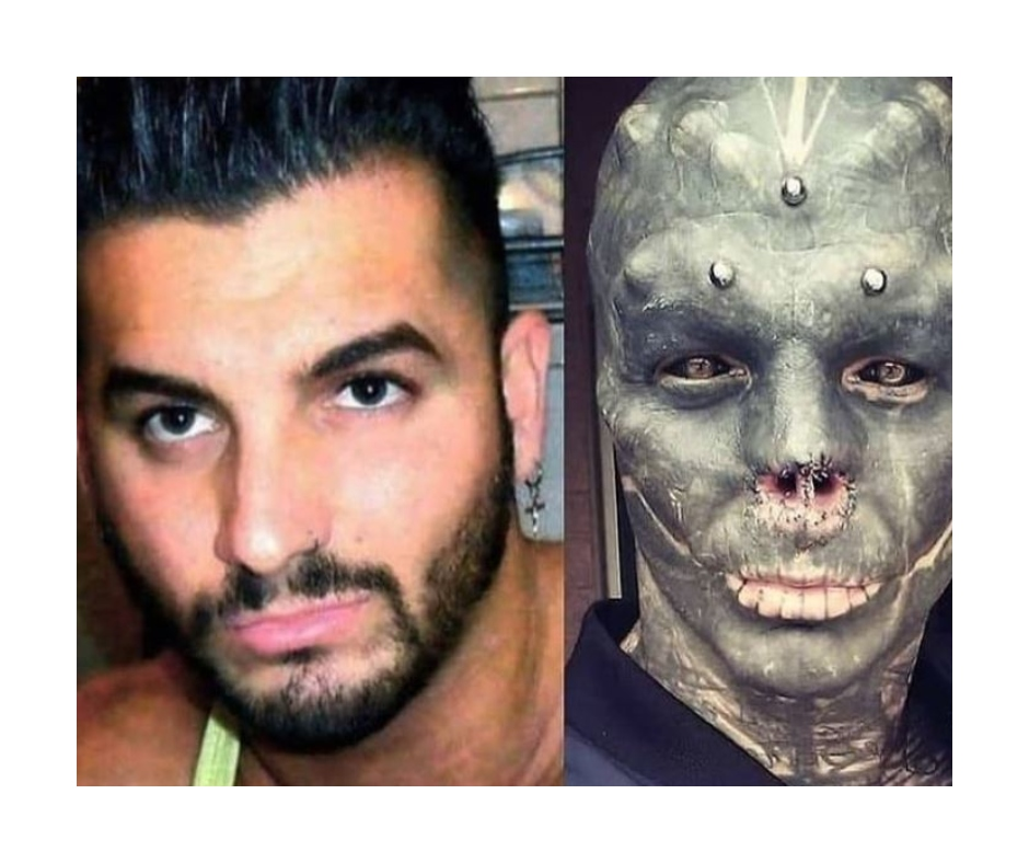 Wait! What? Man cuts off his tongue, nose, lips and ears to look like a black alien