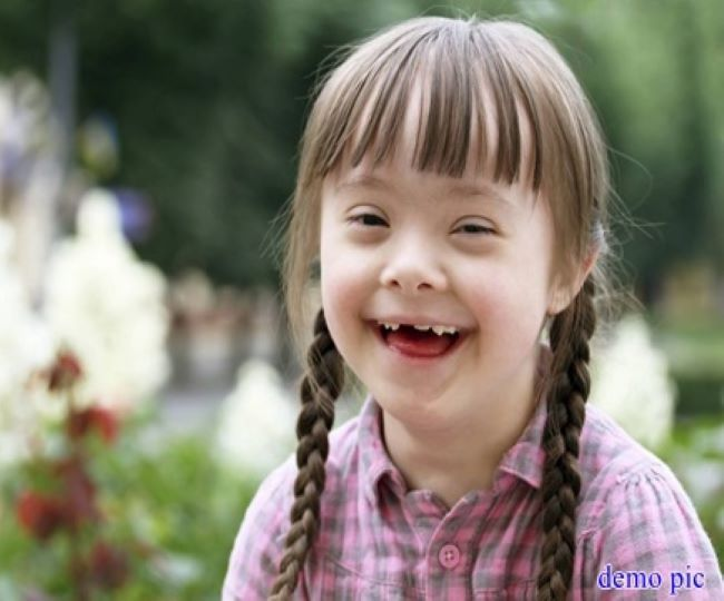 World Down Syndrome Day 2021: What is a down syndrome? Know about its symptoms, causes and other significant detail