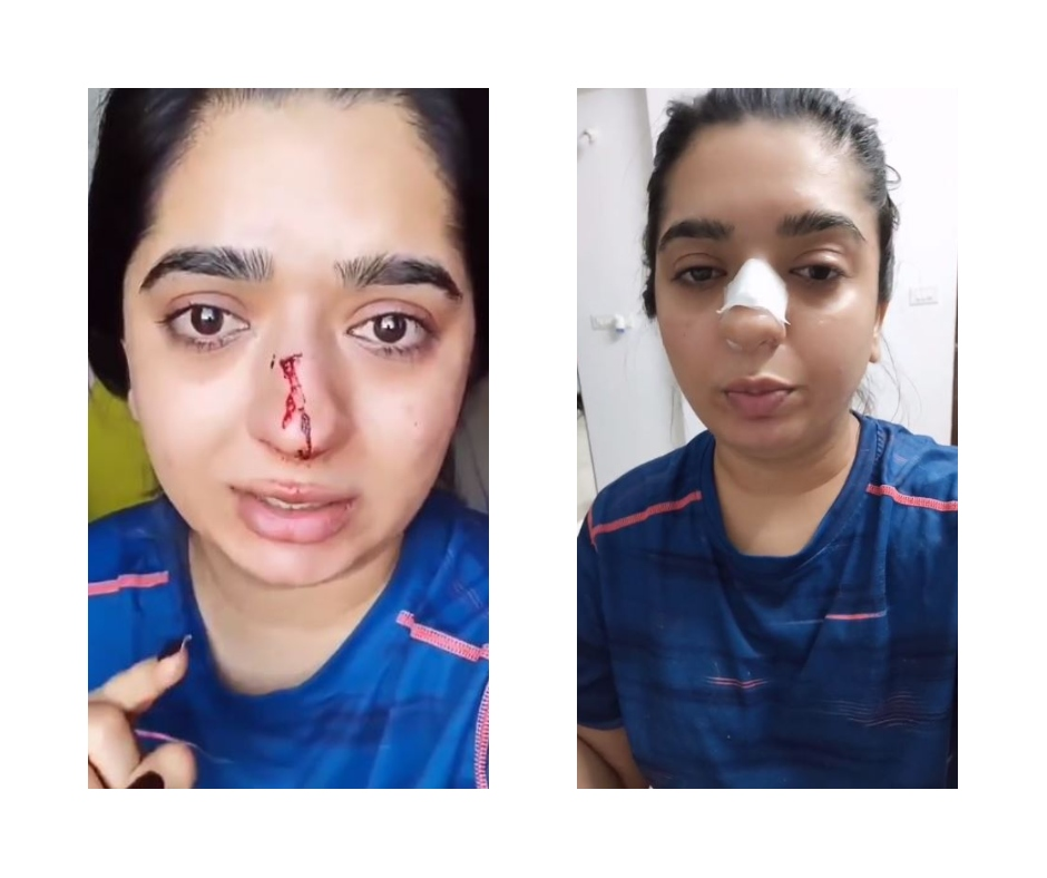 Hitesha Chandranee, who accused Zomato delivery man Kamaraj of assaulting, allegedly flees Bengaluru after FIR