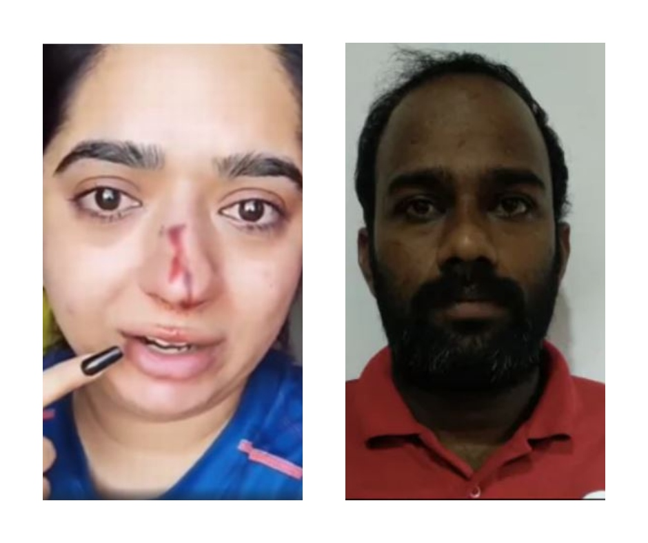 Zomato delivery boy Kamaraj files case against Bengaluru woman Hitesha Chandranee for false accusation